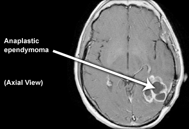 Ependymoma In Adults 42