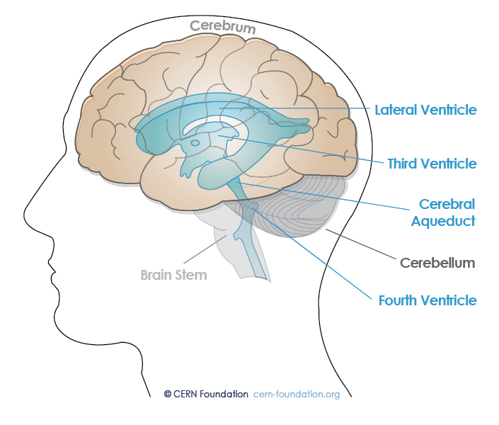 common locations include the ventricles (fluid-filled spaces in the brain  that contain cerebrospinal fluid) and the central canal of the spinal cord